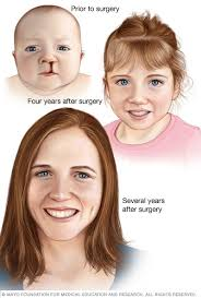 cleft lip repair cleft lip repaired mayo clinic