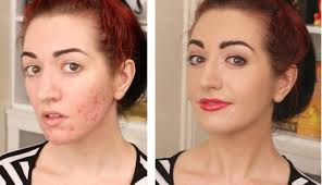 acne s makeup tips and process