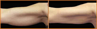 CoolSculpting Before & After Photos   Dr Ali