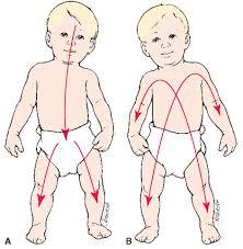 Cephalocaudal Pattern