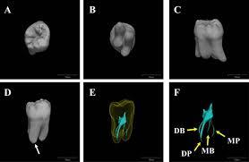 Maxillary Second Molar Full Text Unusual Root Canal Anatomy In A Maxillary Second Molar