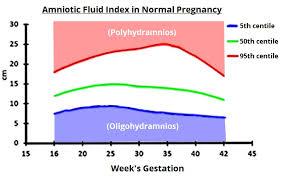 Oligohydramnios Causes Treatment Prognosis