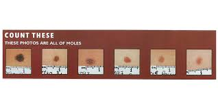 Mole Counting Pilot For Uk Biobank Research Projects