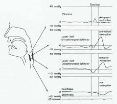 manometry study