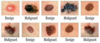 Skin Cancer Chart Skin Cancer Five Golden Rules Of Prevention Steemit