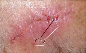 cara mengatasi rasa gatal pada bekas jahitan operasi caesar