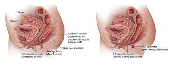 hemorrhoids from chronic constipation