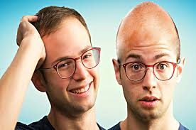 reddit hair loss men