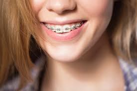 how orthodontics can correct your bite