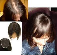 Image result for wigs for bald