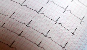 Can You Really Use An App To Diagnose Your Heart Condition