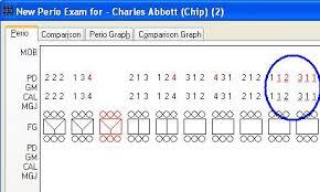 Charting Pocket Depths Larger Than 10