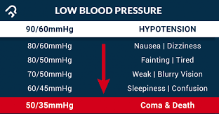 Low Blood Pressure Precautions And Ways To Manage It