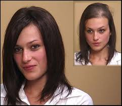 Female Pattern Hair Loss Fascinating Hair Transplants Are Not Effective For Female Pattern Baldness