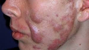 Image result for reasons of acne