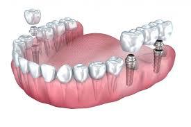 dental implant vs bridge cost dental