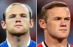top 10 celebrity hair transplants the