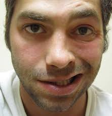 a patient with bell s palsy on the left side