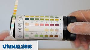 Urine Dipstick Chart Uk Urinalysis Osce Guide Geeky Medics
