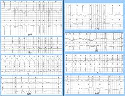 Examples Of Different Cardiac Arrhythmias With Correct A D