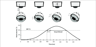 Schematic Representation Of Dynamic Visual Acuity Dva
