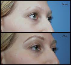 eyebrow microblading blonde hair. brow hair loss eyebrow microblading blonde