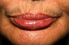 upper lip mustache laser hair removal