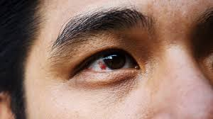 Why Eyes Are Red and How To Get Rid of Bloodshot Eyes - Health