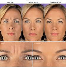 botox treatment for wrinkles