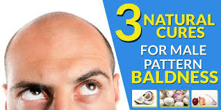 Male Pattern Baldness Cure Inspiration 48 Natural Cures For Male Pattern Baldness