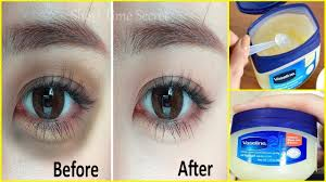 apply vaseline on your under eye dark circles and see the magic remove dark circles in just 3 days