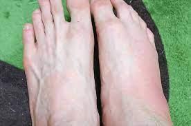 歩く と 足 の 甲 が 痛い