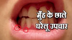 treatment of tooth pain in hindi