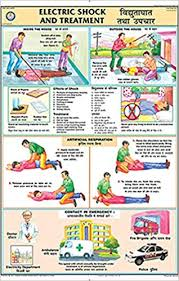 Buy Electric Shock Treatment Chart 50x75cm Book Online At