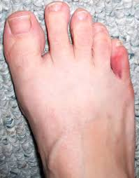 pain reliever for broken toe