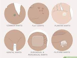 5 ways to get rid of warts wikihow