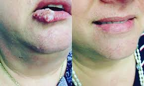 mouth warts remedy wart mouth removal