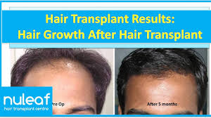 fue hair transplant in pune best results