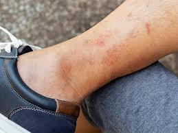 your skin on stress acne hives rash