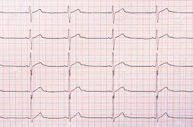 Heart Rhythm Chart For Background Usage