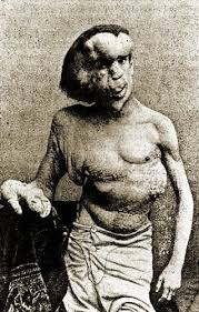joseph merrick the elephant man elephant man the complete story of joseph merrick