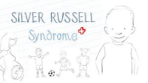 What Is Silver Russell Syndrome Srs