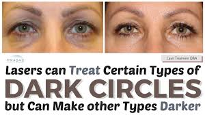treating dark circles how lasers can treat some causes and other treatments to improve color you