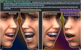 dental head brace