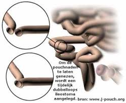 Stomazorg: algemeen Slingeland ziekenhuis
