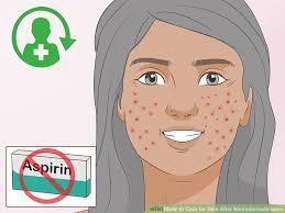 image led care for skin after microdermabrasion step 11