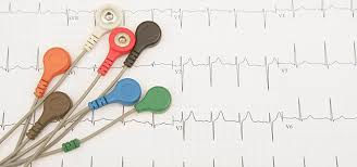 Ekg Lead Placement Chart 12 Lead Ecg Tips For Special Situations Bound Tree