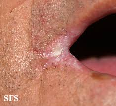 Skin Yeast Infections (Candidiasis) Pictures, Causes, Symptoms ...