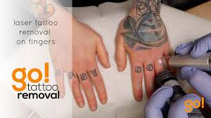 Laser Tattoo Removal On Fingers Laser Tattoo Removal Allentown
