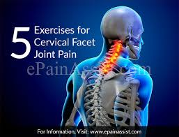 Whats A Facet 5 Exercises For Cervical Facet Joint Pain